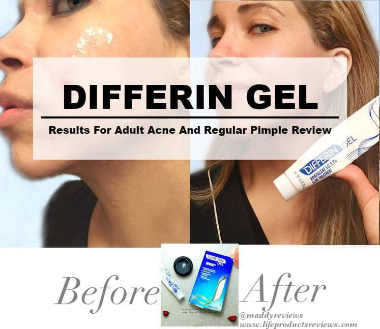 Differin-gel-results-for-adult-acne-and-regular-pimple-review